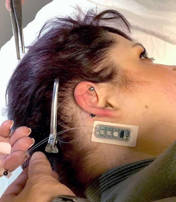 Neurostimulator demonstration