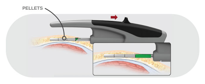 Hormone pellets insertion graphic